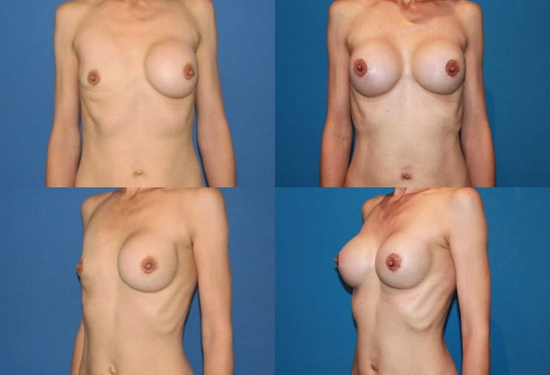 Breast Revision Surgery Gallery - Patient 2158862 - Image 1