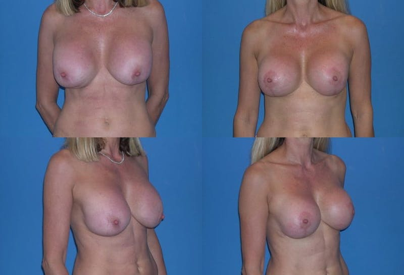 Breast Revision Surgery Gallery - Patient 2158865 - Image 1