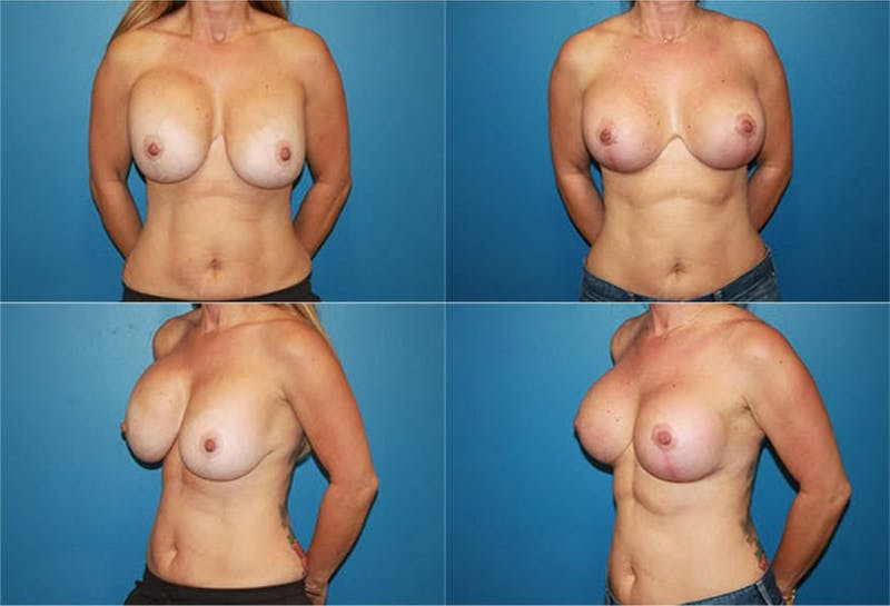 Breast Revision Surgery Gallery - Patient 2158866 - Image 1