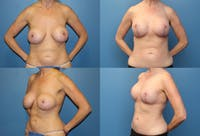 Correction of Long Term Changes Associated with Implants on Top of the Muscle Gallery - Patient 2393921 - Image 1