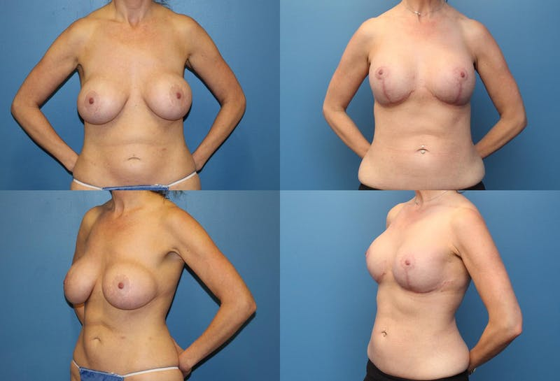 Breast Revision Surgery Gallery - Patient 2158867 - Image 1
