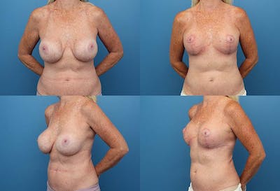 Correction of Long Term Changes Associated with Implants on Top of the Muscle Gallery - Patient 2393922 - Image 1