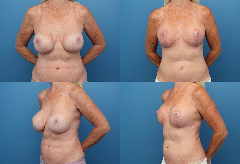 Breast Revision Surgery Gallery - Patient 2158868 - Image 1