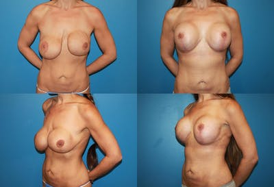 Correction of Long Term Changes Associated with Implants on Top of the Muscle Gallery - Patient 2393923 - Image 1