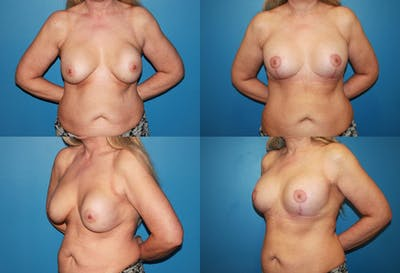 Correction of Long Term Changes Associated with Implants on Top of the Muscle Gallery - Patient 2393924 - Image 1