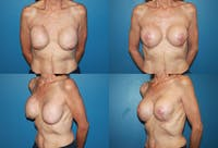 Breast Revision Surgery Gallery - Patient 2158871 - Image 1