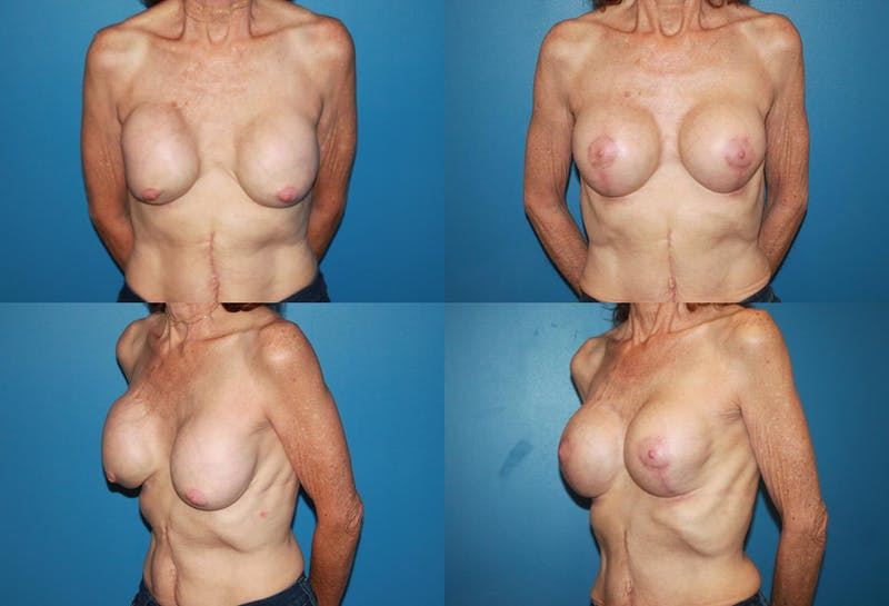 Correction of Long Term Changes Associated with Implants on Top of the Muscle Gallery - Patient 2393925 - Image 1