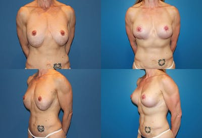 Correction of Long Term Changes Associated with Implants on Top of the Muscle Gallery - Patient 2393926 - Image 1