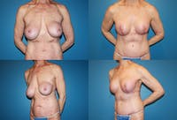 Correction of Long Term Changes Associated with Implants on Top of the Muscle Gallery - Patient 2393927 - Image 1