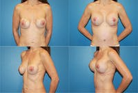 Correction of Long Term Changes Associated with Implants on Top of the Muscle Gallery - Patient 2393928 - Image 1