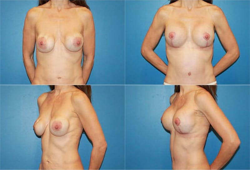 Breast Revision Surgery Gallery - Patient 2158874 - Image 1
