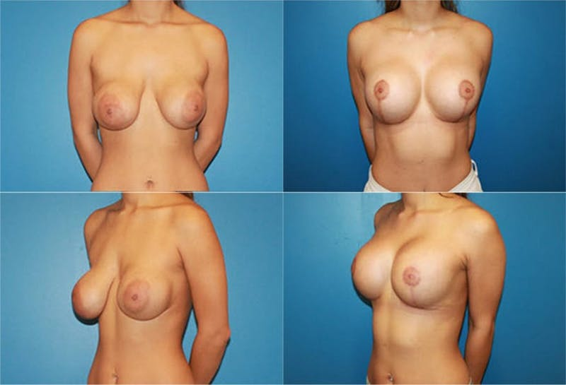 Correction of Long Term Changes Associated with Implants on Top of the Muscle Gallery - Patient 2393930 - Image 1