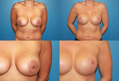 Enlarged Areola Gallery - Patient 2394104 - Image 1