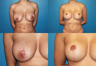 Breast Revision Surgery Gallery - Patient 2158881 - Image 1