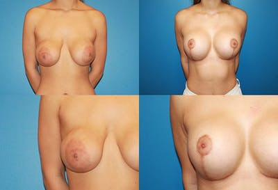 Enlarged Areola Gallery - Patient 2394106 - Image 1