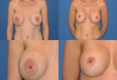Enlarged Areola Gallery - Patient 2394107 - Image 1