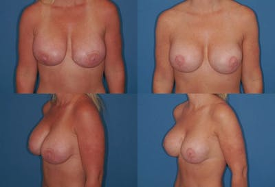 Enlarged Areola Gallery - Patient 2394108 - Image 1