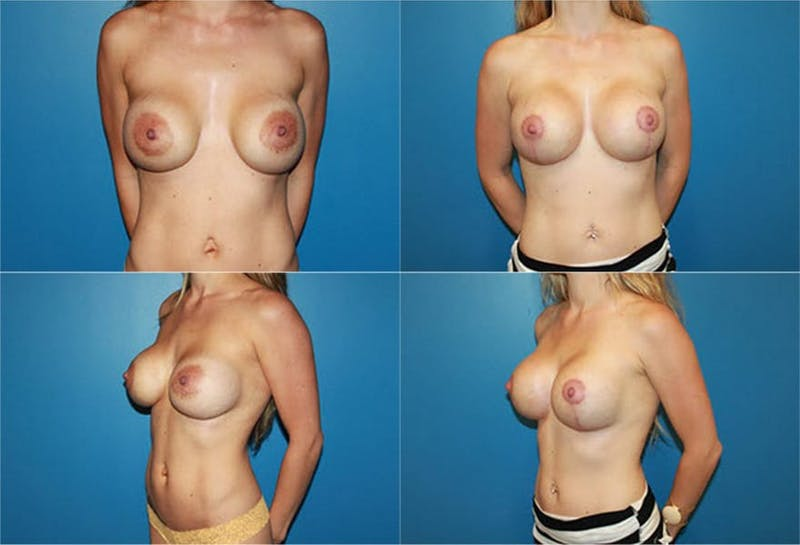 Enlarged Areola Gallery - Patient 2394109 - Image 1