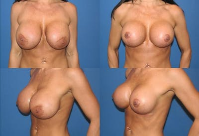 Enlarged Areola Gallery - Patient 2394110 - Image 1