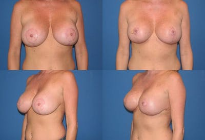 Breast Revision Surgery Gallery - Patient 2158896 - Image 1