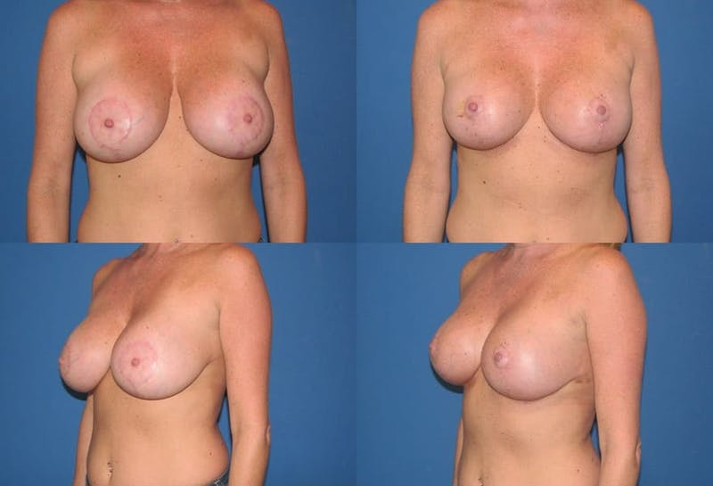 Enlarged Areola Gallery - Patient 2394111 - Image 1