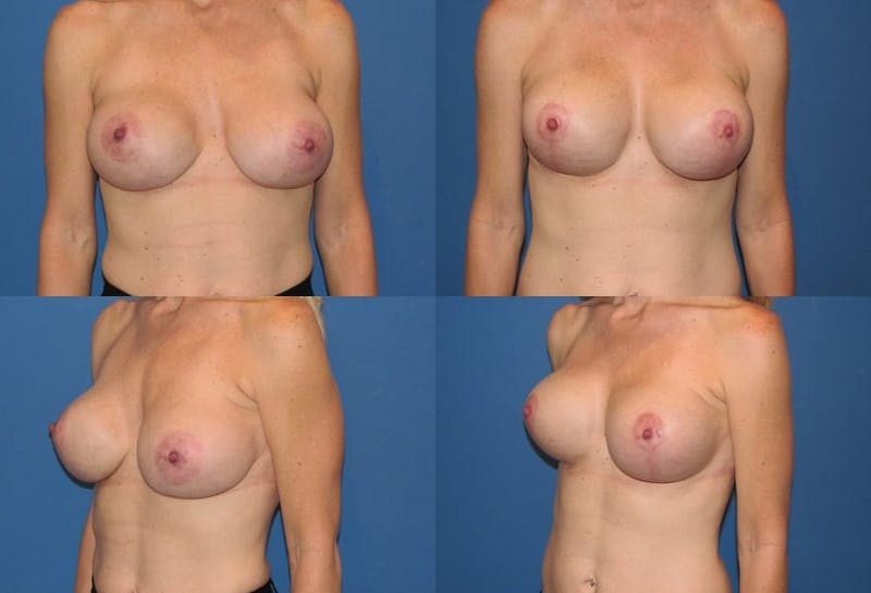 Enlarged Areola Gallery - Patient 2394112 - Image 1