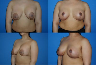 Enlarged Areola Gallery - Patient 2394113 - Image 1