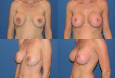 Enlarged Areola Gallery - Patient 2394116 - Image 1