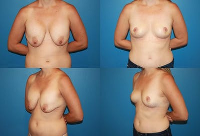 Removal of Breast Implants and Mastopexy Gallery - Patient 2394212 - Image 1