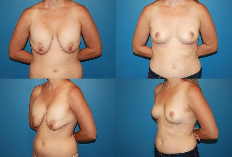 Breast Revision Surgery Gallery - Patient 2158908 - Image 1