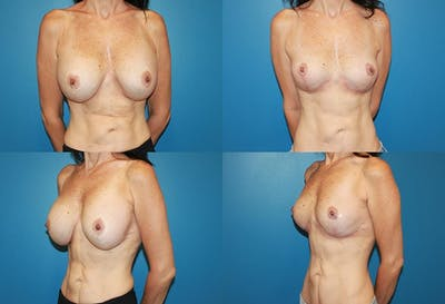 Removal of Breast Implants and Mastopexy Gallery - Patient 2394213 - Image 1