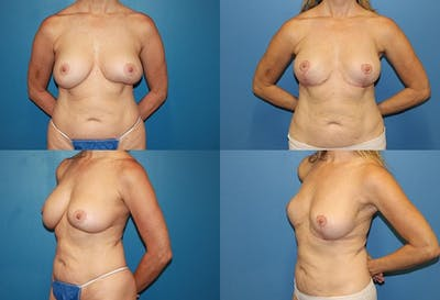 Breast Revision Surgery Gallery - Patient 2158910 - Image 1