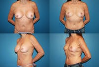 Breast Revision Surgery Gallery - Patient 2158911 - Image 1