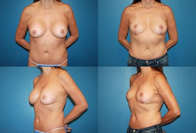 Removal of Breast Implants and Mastopexy Gallery - Patient 2394215 - Image 1