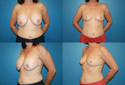 Breast Revision Surgery Gallery - Patient 2158922 - Image 1