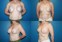 Removal of Breast Implants and Mastopexy Gallery - Patient 2394218 - Image 1