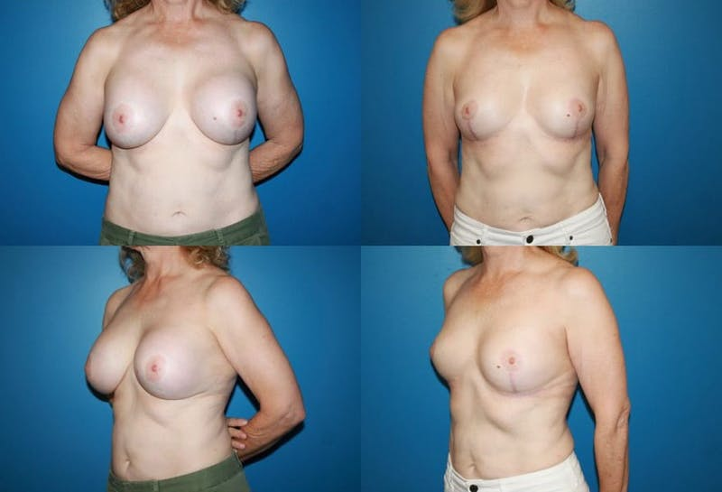 Breast Revision Surgery Gallery - Patient 2158923 - Image 1