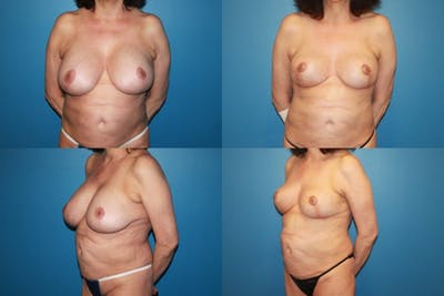 Breast Revision Surgery Gallery - Patient 2158927 - Image 1