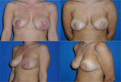 Breast Revision Surgery Gallery - Patient 2158933 - Image 1