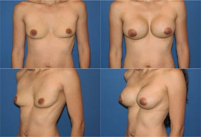 Breast Revision Surgery Gallery - Patient 2158934 - Image 1