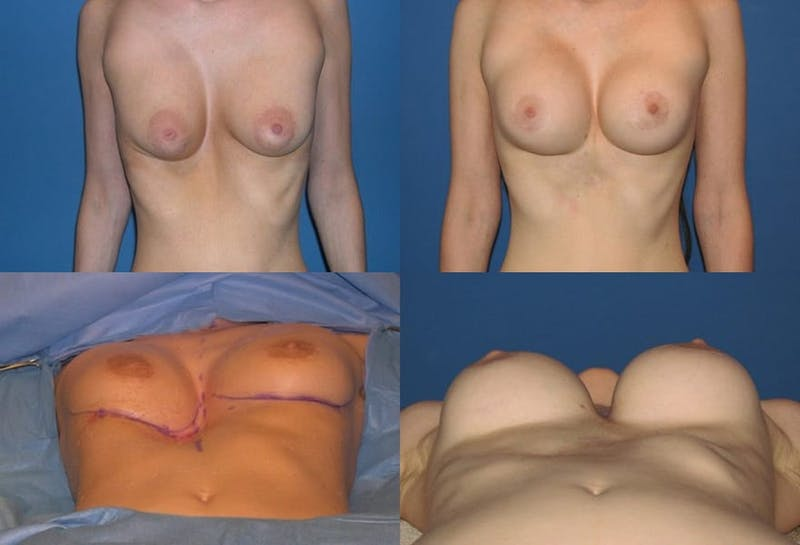 Breast Revision Surgery Gallery - Patient 2158935 - Image 1