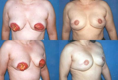 Breast Revision Surgery Gallery - Patient 2158937 - Image 1