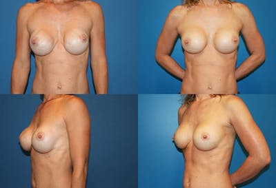 Breast Revision Surgery Gallery - Patient 2158939 - Image 1