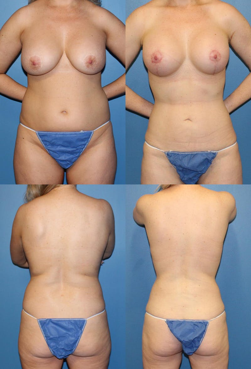 Liposuction Gallery - Patient 2158948 - Image 1