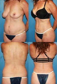 Liposuction: Female Gallery - Patient 2394707 - Image 1