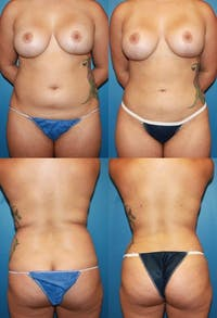 Liposuction Gallery - Patient 2158951 - Image 1