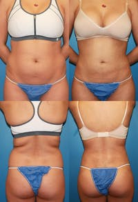Liposuction: Female Gallery - Patient 2394709 - Image 1
