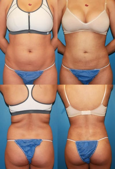 Liposuction Gallery - Patient 2158953 - Image 1