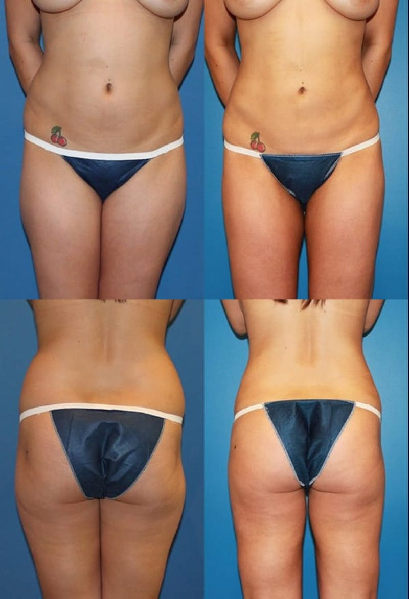 Liposuction: Female Gallery - Patient 2394710 - Image 1