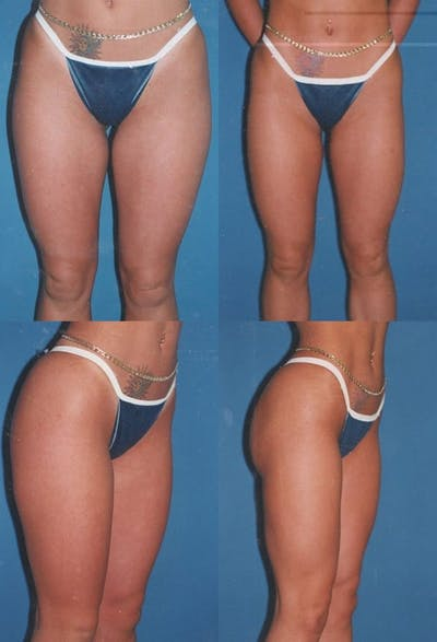 Liposuction Gallery - Patient 2158955 - Image 1